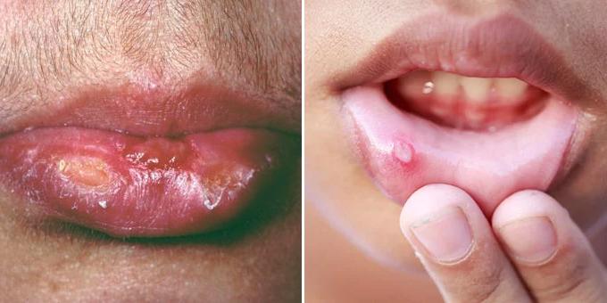 hiv cold sores