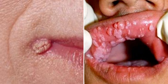 hpv warts mouth sores hiv positive