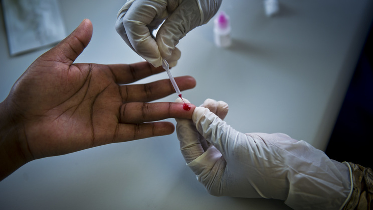 HIV Test: What to expect and the counselling necessary upon receiving a positive result
